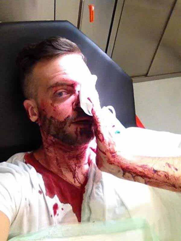 Verletzter Deutscher, der Frauen bei Übergriffen am Bahnhof Köln helfen wollte bei den Übergriffen Silvester 2015 #Date:01.2016#