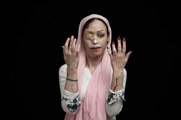 Ehefrau eines Moslem-Ehemannes. Die Frau hatte die Scheidung eingereicht. Er hat sie daraufhin mit Säure verätzt. Aber nicht dass einer meint, das habe was mit dem Islam zu tun. #Date:04.2016#