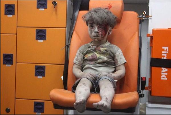 Eine Riesenwallung erfasst die Welt, als sie das Bild des  5-jährigen Jungen sieht. Die perfekte Instrumentalisierung eines Kindopfers in Aleppo. Man zerrt den Kleinen aus den Trümmern, setzt ihn perfekt ausgeleuchtet in einen Krankenwagen und filmt und fotografiert minutenlang drauf los. Keine Ansprache, keine psychische Betreuung, keine Wundversorgung, keine Untersuchung auf innere Verletzungen und der Vitalfunktionen. Alles wird dem Assad- und Russenbashing der djihadsüchtigen FSA-Rebellen untergeordnet. Betrachten wir den Kontext, dass es sich um einen innerislamischen Glaubenskrieg der Rebellen-Sunniten gegen das ehemals gemäßigte Assad-Regime handelt, dann wird vollends klar, dass die Rebellen (unsere Asylbewerber und Kriegsflüchtlinge) solche Bilder bewusst in Kauf nehmen. #Date:08.2016#