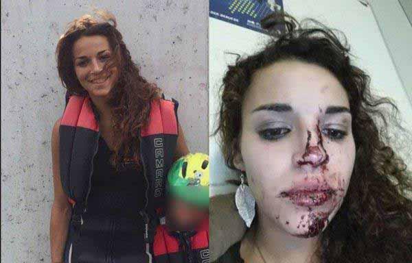 Opfer der Silvesternacht von Köln. Blutiges Mädchen #Date:01.2016#