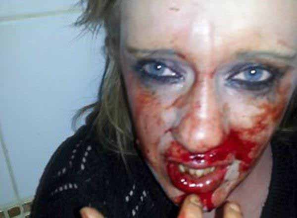 This woman is a victim of rape by immigrants in Finland!!!!! Moslem-Attacke auf Frau in Finnland. #Date:01.2016#