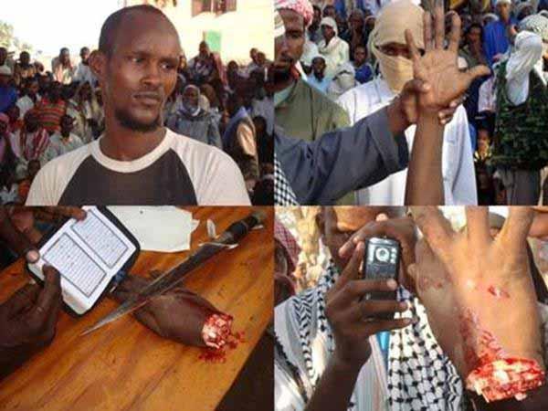 Islam, die Religion des Friedens und der Liebe. Hand abhacken nach Diebstahl in Vollzug von Koran und Scharia #Date:01.2016#