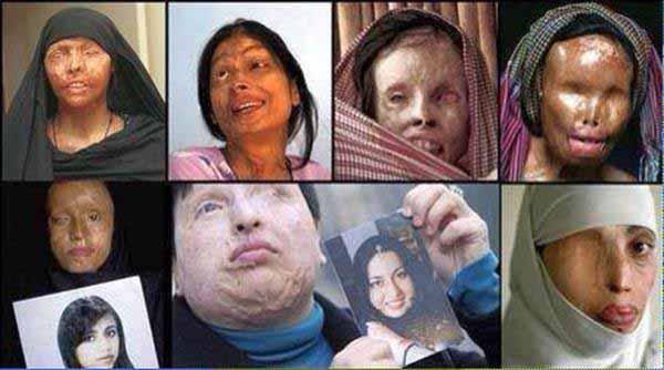 Islamofaschistische weibliche Säure-Attentatsopfer #Date:01.2016#