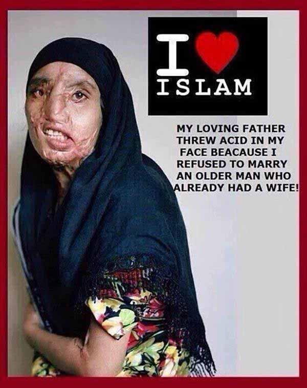 Muslima mit verätztem Gesicht wegen Weigerung zu heiraten #Date:01.2016#