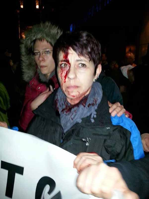 Verletzte Pegida-Demonstranten #Date:02.2016#